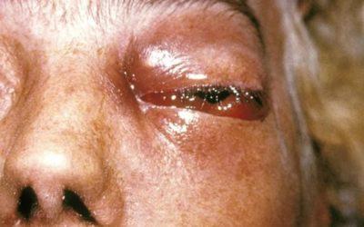 Lekári v Indii museli pre čiernu hubu odstrániť pacientom oči, zuby aj časť tváre. Hrozí Európe podobný scenár?
